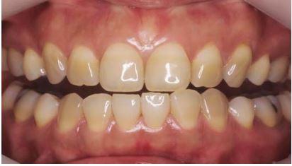 модели на отбеливание зубов липецк